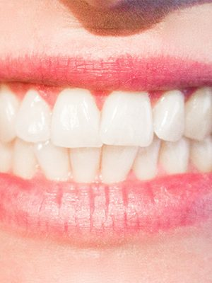 higiene_oral