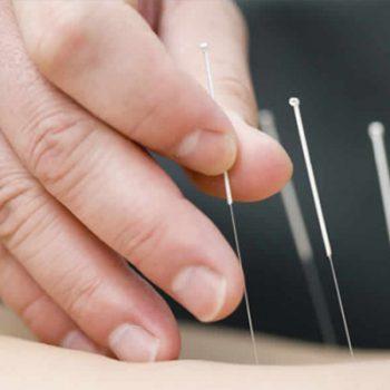 acupuntura_tercera_edad